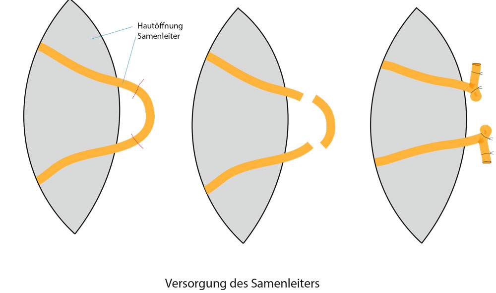 vasektomie sperma